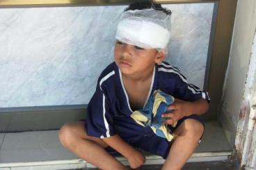 Injured-Palestinian-child